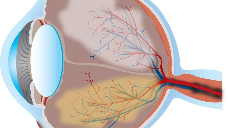 Die Entstehung einer Makuladegeneration und wie man sie erkennen und behandeln kann