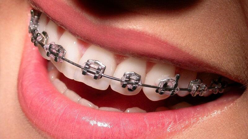 Die Entstehung von Zahnfehlstellungen und wie man sie erkennen und behandeln kann