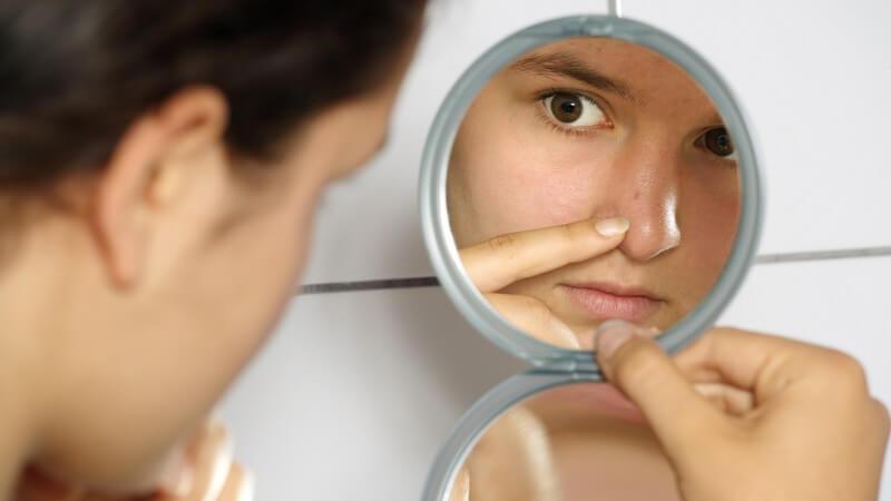 Acne vulgaris: Ursachen, Symptome, Behandlung und Vorbeugung - Die Entstehung von Akne und wie man sie erkennen und behandeln kann