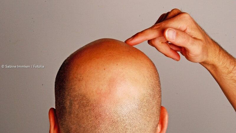 Halbglatze frisuren mit Coole Frisuren