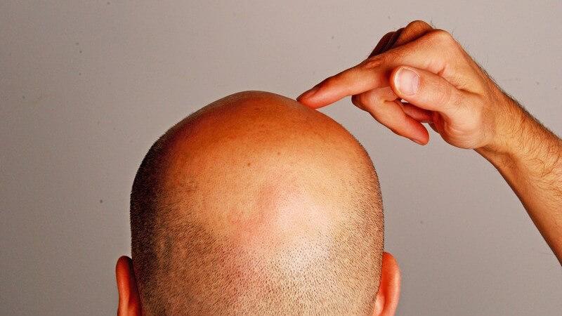 Ein Ratgeber rund um das Thema Glatze