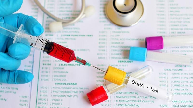 Funktion und Durchführung von Drogentests