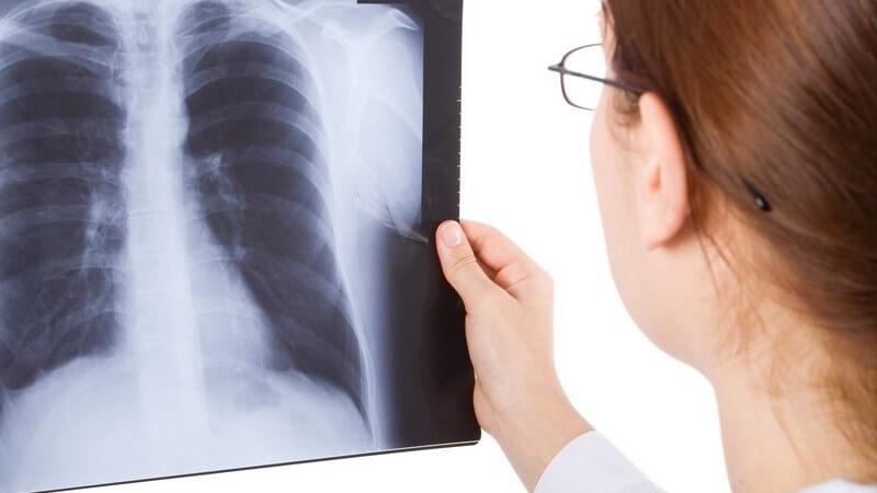 Funktion und Durchführung sowie mögliche Komplikationen einer Röntgenuntersuchung zur Verbildlichung innerer Vorgänge und Zustände