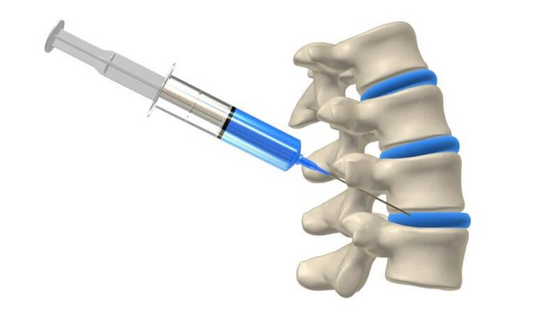 Funktion und Durchführung sowie mögliche Komplikationen der Knochenmarkbiopsie zur Entnahme und Untersuchung von Knochenmark