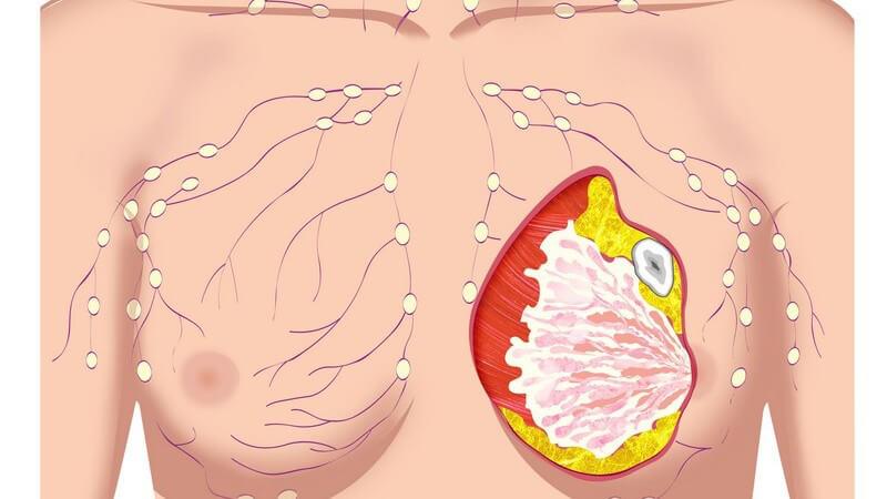Wissenswertes zur Mammographie
