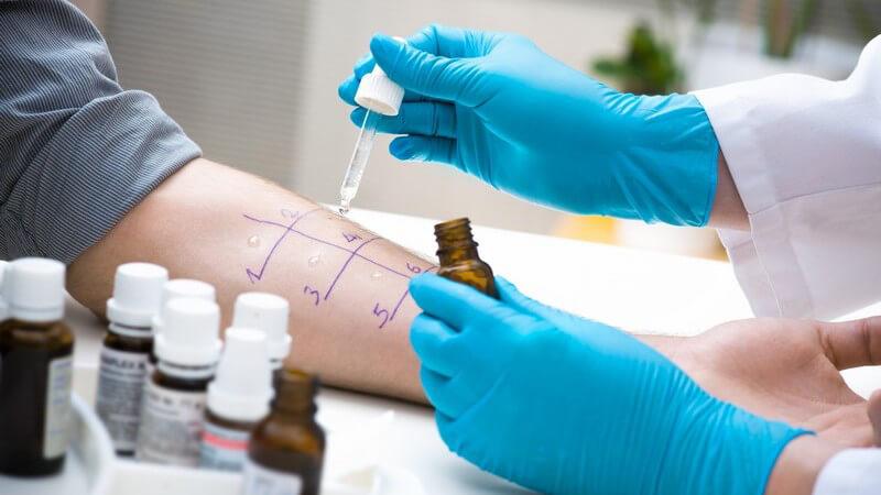 Funktion und Durchführung vom Allergietest zur Überprüfung verschiedener Allergien