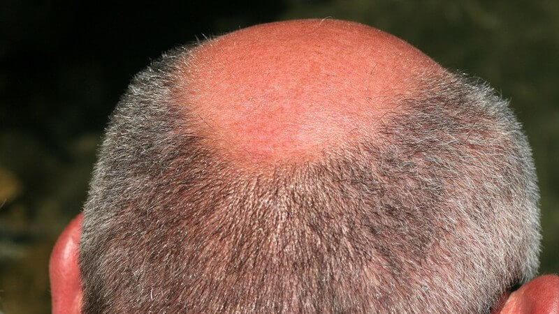 Voraussetzungen, die das Haar für eine Verdichtung erfüllen sollte und Tipps zur Pflege der Haare