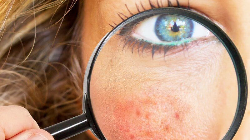 Es gibt verschiedene Hautprobleme, die alle unterschiedliche Ursachen haben und einer individuellen Behandlung bedürfen