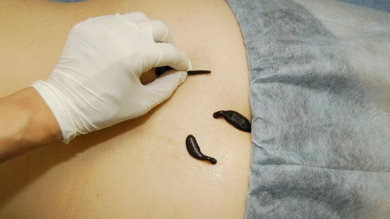 Problematische Wunden heilen besser mit Blutegeln