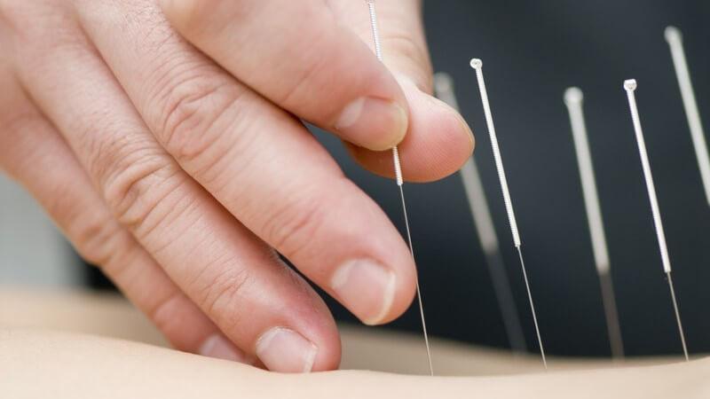 Unterschiedliche Akupunkturvarianten zur Behandlung von Krankheiten