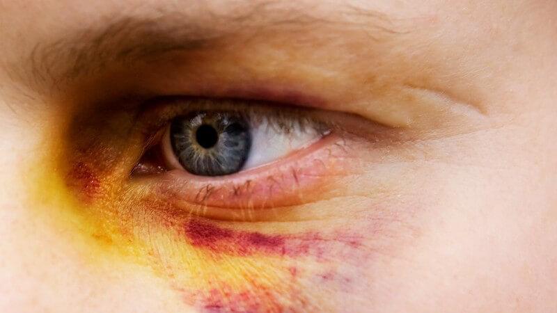 Die Entstehung von Augenverletzungen und wie man sie erkennen und behandeln kann