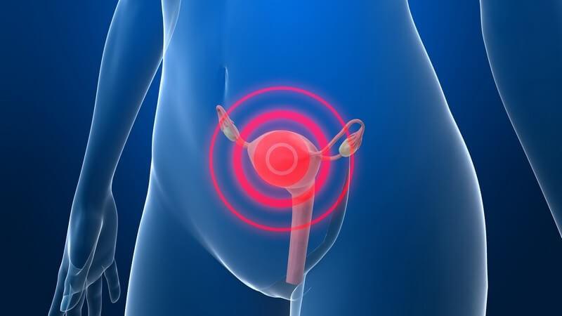 Die Entstehung einer Endometriose und wie man sie erkennen und behandeln kann