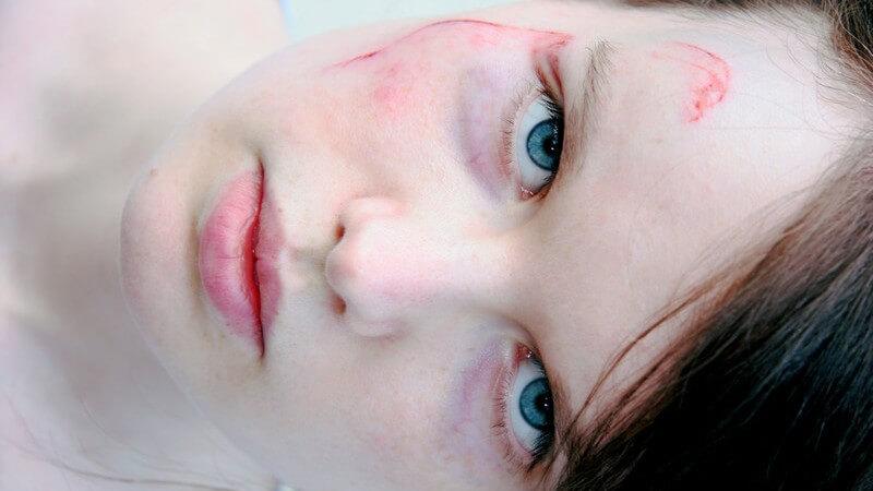 Die Entstehung eines Jochbeinbruchs und wie man ihn erkennen und behandeln kann