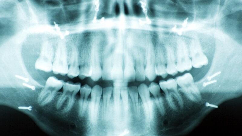 Die Entstehung eines Kieferbruchs und wie man ihn erkennen und behandeln kann