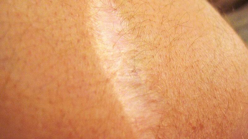 Die Entstehung von Narben und wie man sie behandeln kann