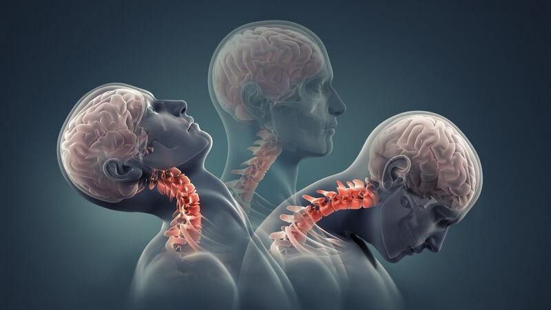 Die Entstehung eines Schleudertraumas und wie man es erkennen und behandeln kann