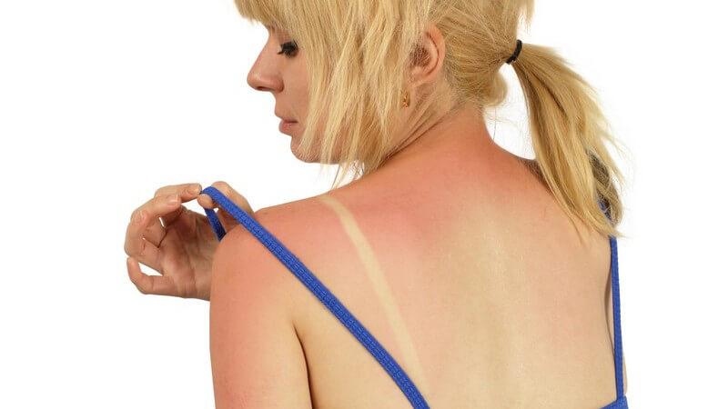 Die Entstehung eines Sonnenbrands und wie man ihn erkennen und behandeln kann