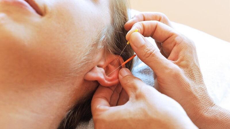 Die Ohrakupunktur zur Behandlung gesundheitlicher Störungen