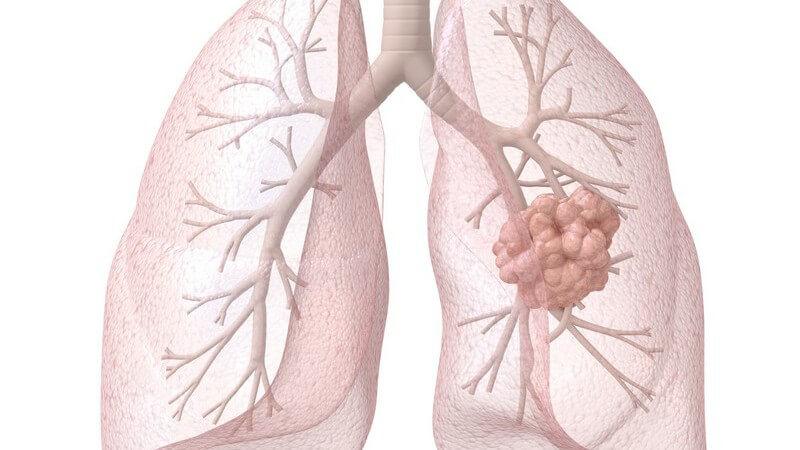 Die Durchführung und mögliche Nebenwirkungen einer Strahlentherapie zur Behandlung von Krebserkrankungen