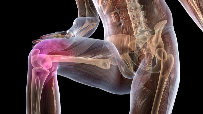 Die Entstehung von Knieschmerzen und wie man sie behandeln und lindern kann