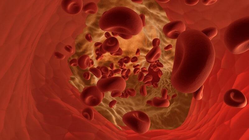 Zu den möglichen Beschwerden und Erkrankungen der Schlagadern zählen Stenosen sowie Verkalkungen - bei einer Verengung ist eine operative Behandlung möglich