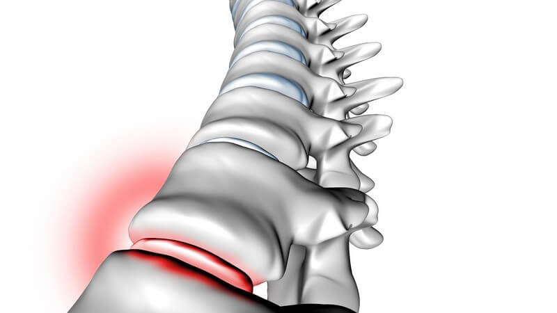 Der menschliche Körper ist mit insgesamt 23 Bandscheiben ausgestattet; sie sorgen für die Beweglichkeit der Wirbelsäule