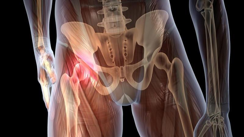 Die Entstehung von Hüftschmerzen und wie man sie behandeln und lindern kann
