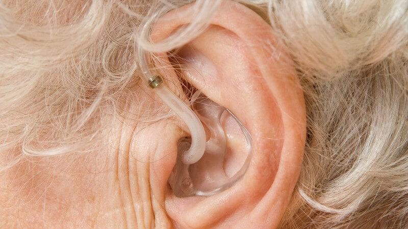 Funktionsweise und Nutzen verschiedener Arten von Hörgeräten - Infos zu Hinter-dem-Ohr-Geräten, Im-Ohr-Geräten und implantierbare Hörsystemen