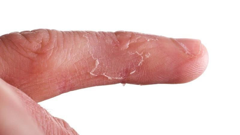 Die Entstehung einer Hautentzündung und wie man die Dermatitis erkennen und behandeln kann