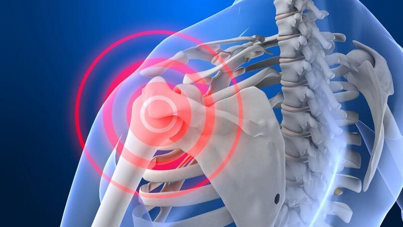 Die gelenkige Verbindung des Schulterblatts stabilisiert das Schultergelenk und passt sich den Oberarmbewegungen an