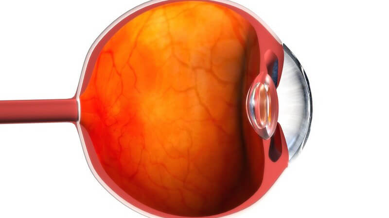 Der zweite Hirnnerv leitet Informationen, die durch das Auge aufgenommen werden, an das Gehirn weiter