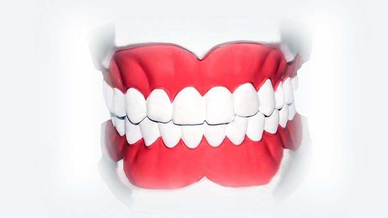 Das Zahnfleisch ist am Zahn sowie am Alveolarfortsatz befestigt und besteht aus Plattenepithel