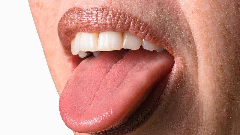 Die Zunge wird in den Zungenkörper, die Zungenwurzel sowie die Zungenspitze eingeteilt
