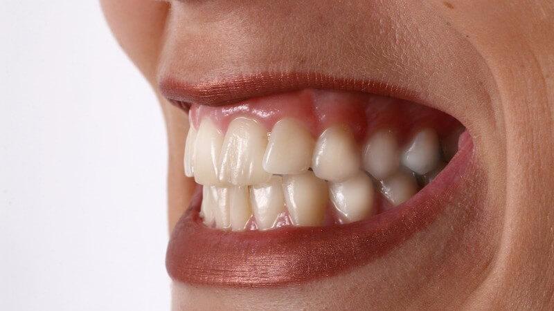 Zu den Bestandteilen des Zahns gehören Zahnschmelz, Zahnbein, Zahnmark und Wurzelzement