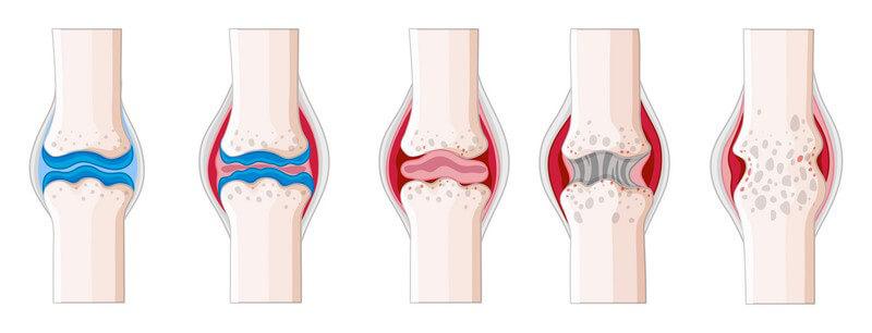 In welchen Bereichen Rheumatologen/Rheumatologinnen arbeiten und was sie machen