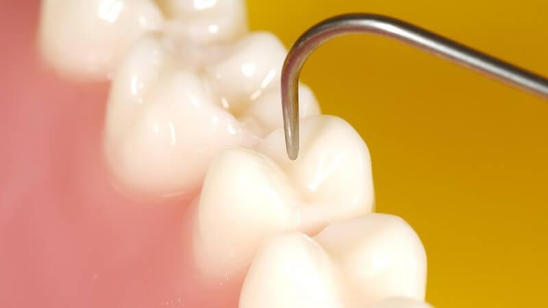 In welchen Bereichen Zahnärzte/Zahnärztinnen arbeiten und was sie machen