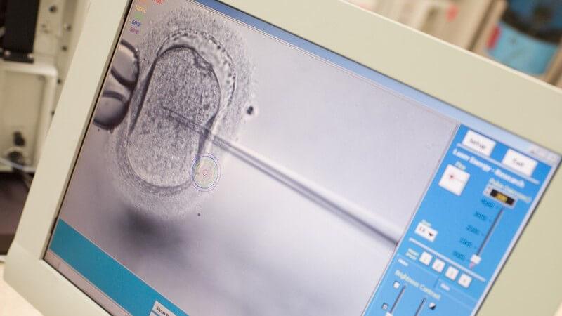 Die Möglichkeiten einer künstlichen Befruchtung trotz Sterilisation