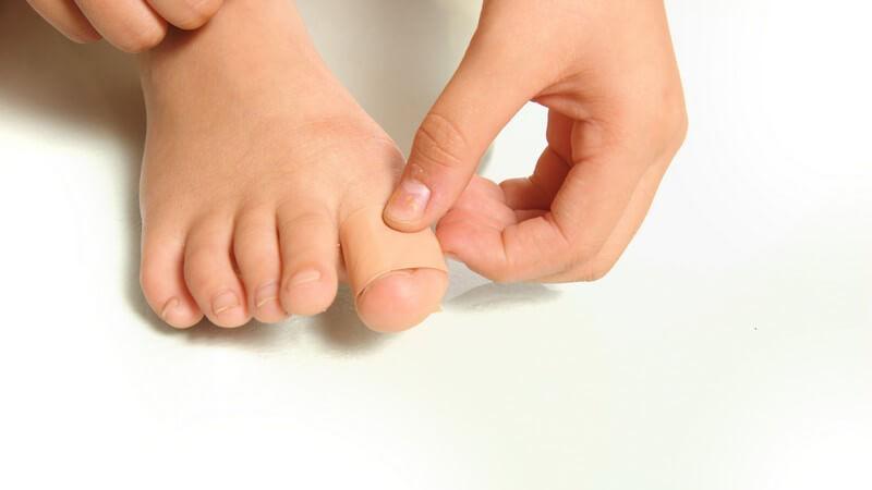 Wir erklären die völlig unblutige und meistens auch schmerzfreie Methode zur Behebung eingewachsener Nägel