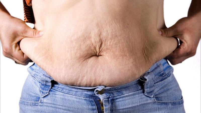 Bauchdeckenstraffung zugenommen nach Dependent Clauses